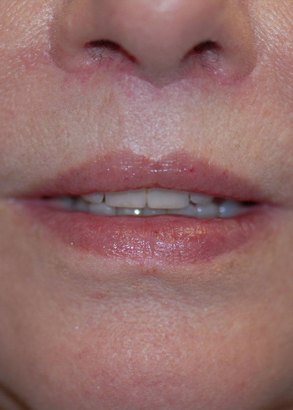 Lip Enhancement Gallery - Patient 5883902 - Image 2