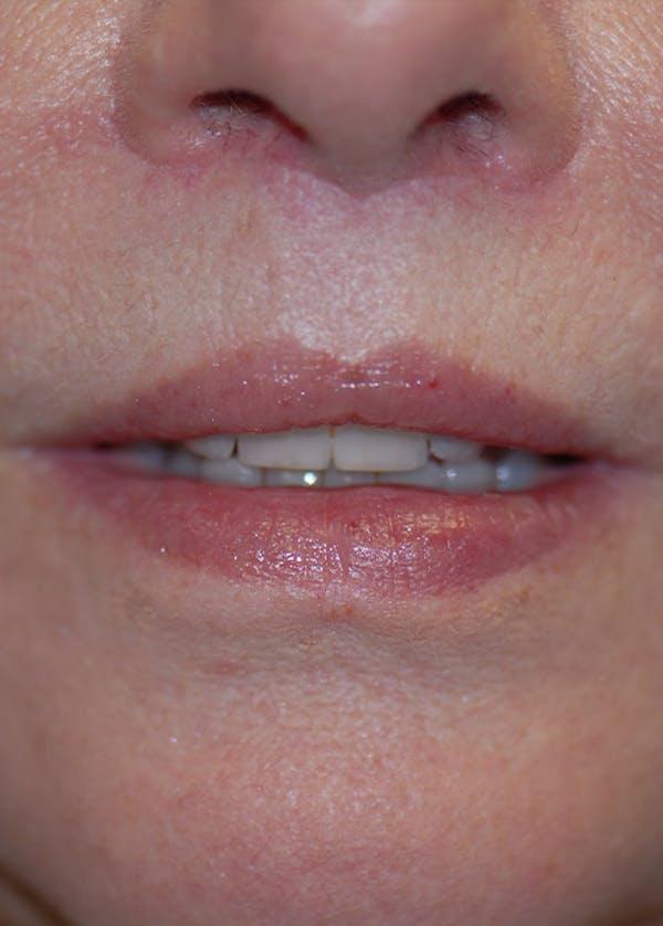 Lip Enhancement Gallery - Patient 5883902 - Image 2