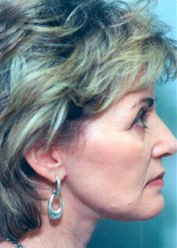 Facelift and Mini Facelift Gallery - Patient 5883901 - Image 2