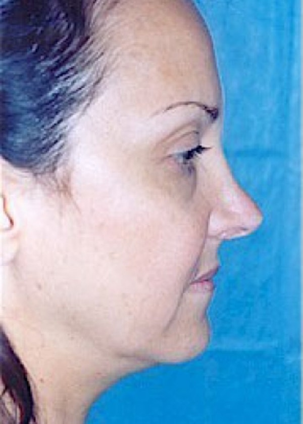 Rhinoplasty Gallery - Patient 5883905 - Image 5