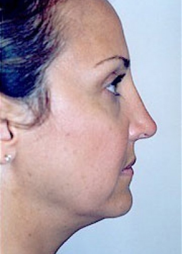 Rhinoplasty Gallery - Patient 5883905 - Image 6