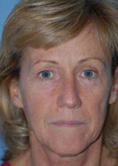 Facelift and Mini Facelift Gallery - Patient 5883903 - Image 1