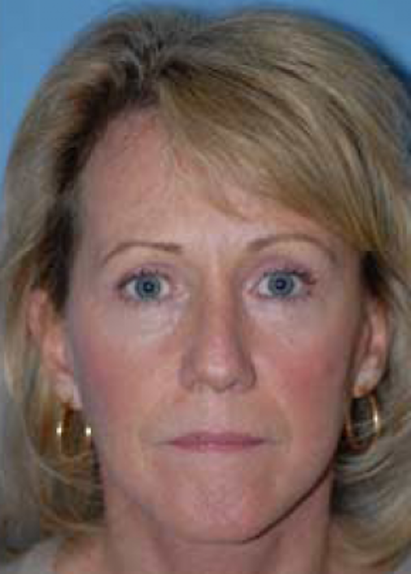 Facelift and Mini Facelift Gallery - Patient 5883903 - Image 2