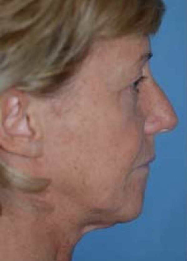 Facelift and Mini Facelift Gallery - Patient 5883907 - Image 1