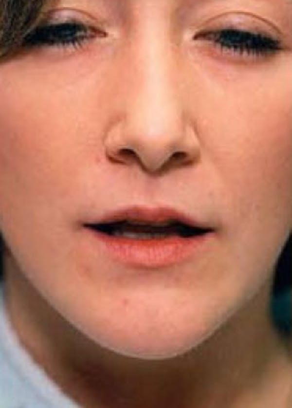 Lip Enhancement Gallery - Patient 5883906 - Image 1