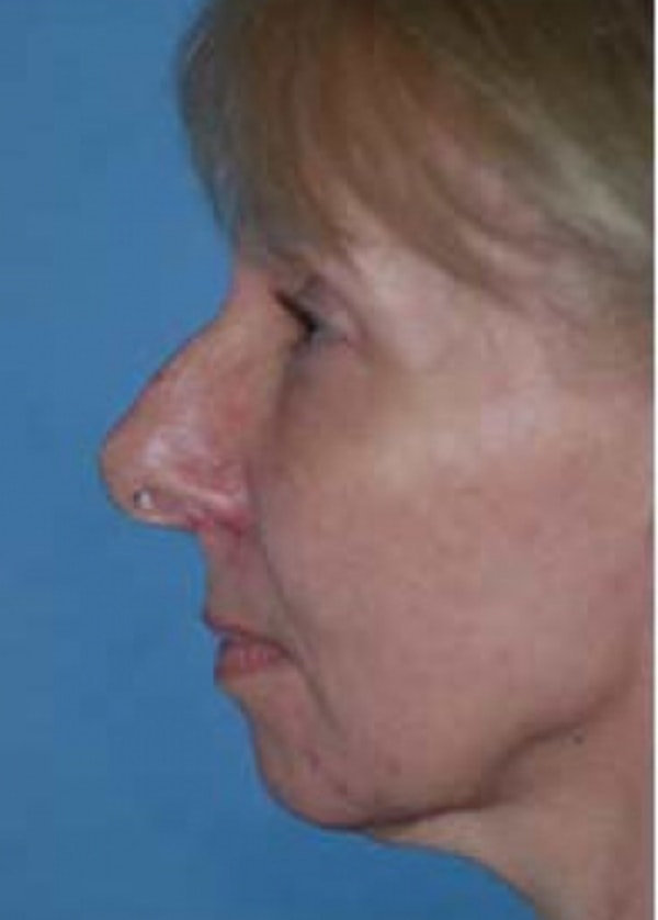 Rhinoplasty Gallery - Patient 5883910 - Image 1