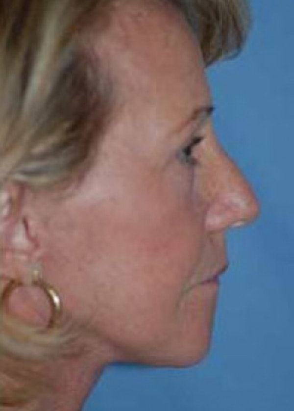 Facelift and Mini Facelift Gallery - Patient 5883907 - Image 2