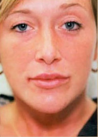 Lip Enhancement Gallery - Patient 5883906 - Image 2