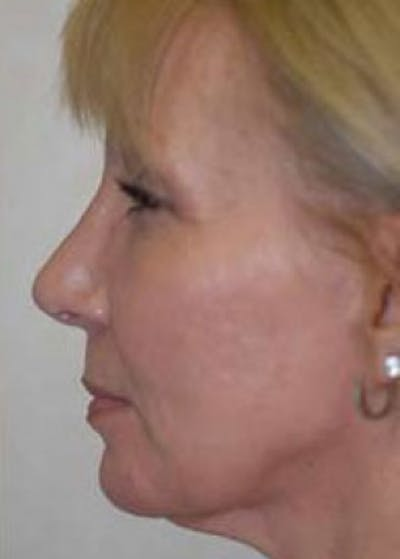 Rhinoplasty Gallery - Patient 5883910 - Image 24