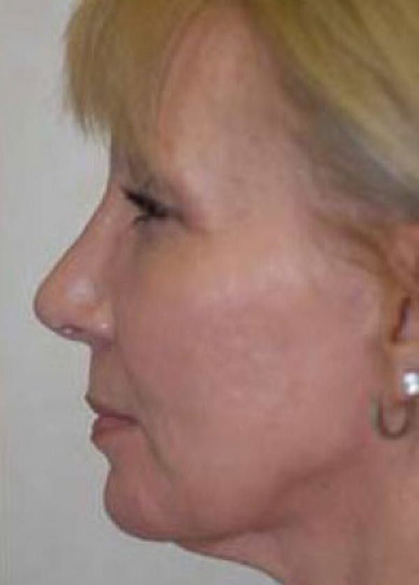 Rhinoplasty Gallery - Patient 5883910 - Image 2