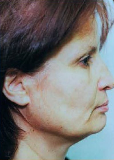 Facelift and Mini Facelift Gallery - Patient 5883913 - Image 1