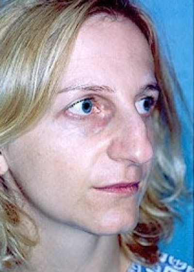 Rhinoplasty Gallery - Patient 5883916 - Image 1