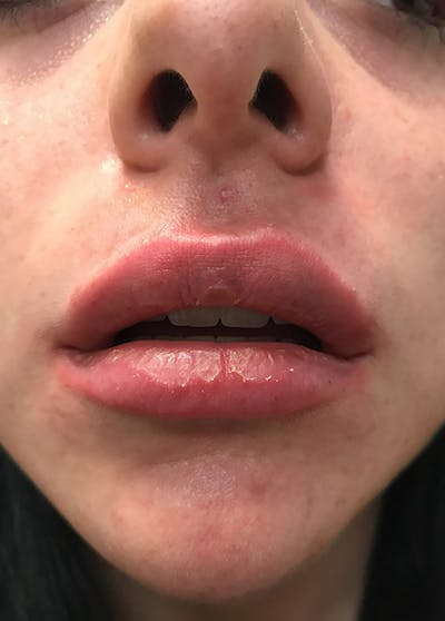 Lip Enhancement Gallery - Patient 5883912 - Image 4