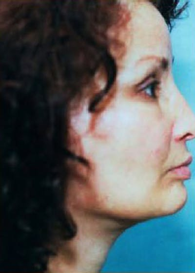 Facelift and Mini Facelift Gallery - Patient 5883913 - Image 2
