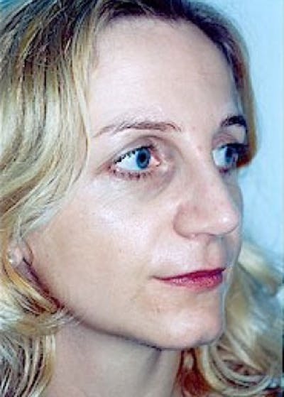 Rhinoplasty Gallery - Patient 5883916 - Image 25