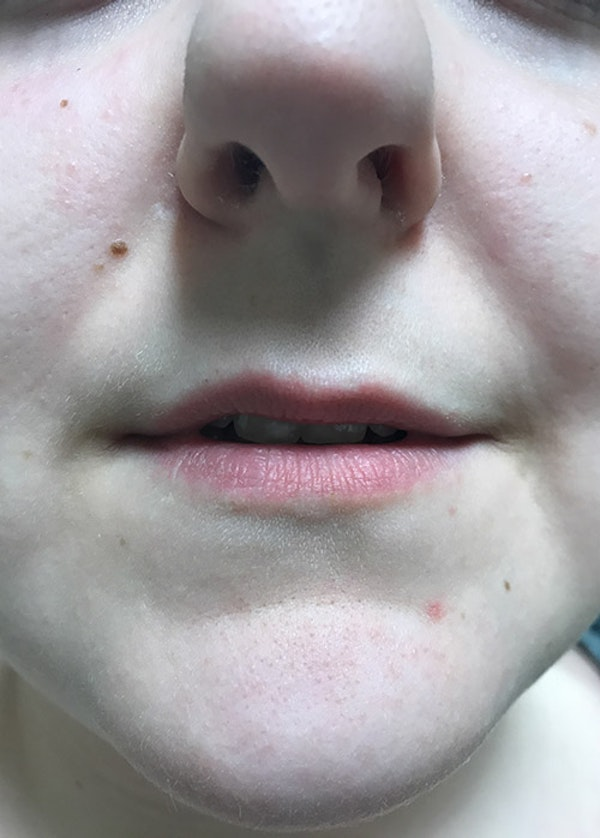 Lip Enhancement Gallery - Patient 5883915 - Image 1