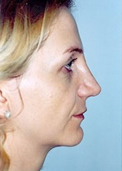 Rhinoplasty Gallery - Patient 5883916 - Image 4