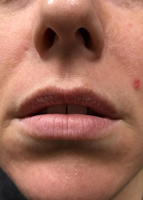 Lip Enhancement Gallery - Patient 5883919 - Image 1
