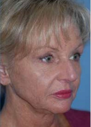 Facelift and Mini Facelift Gallery - Patient 5883918 - Image 1
