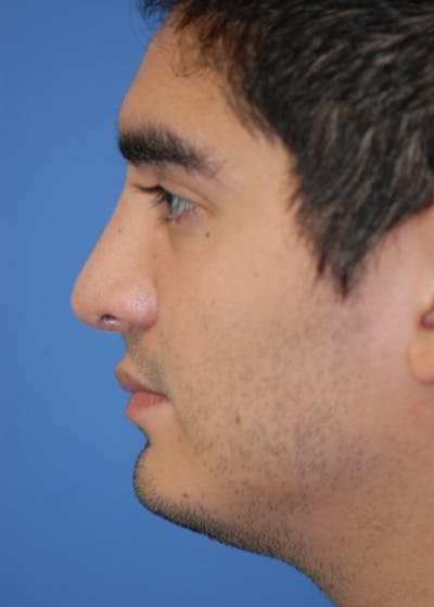 Rhinoplasty Gallery - Patient 5883920 - Image 26