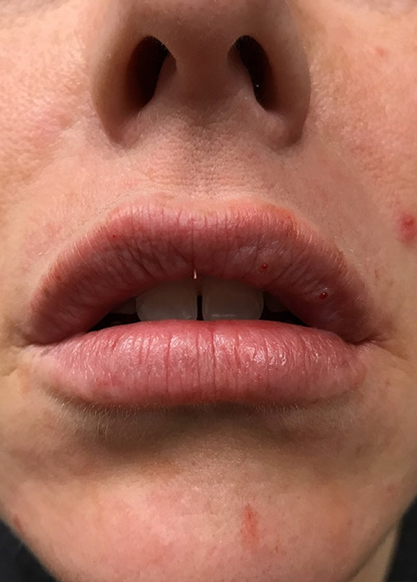 Lip Enhancement Gallery - Patient 5883919 - Image 2