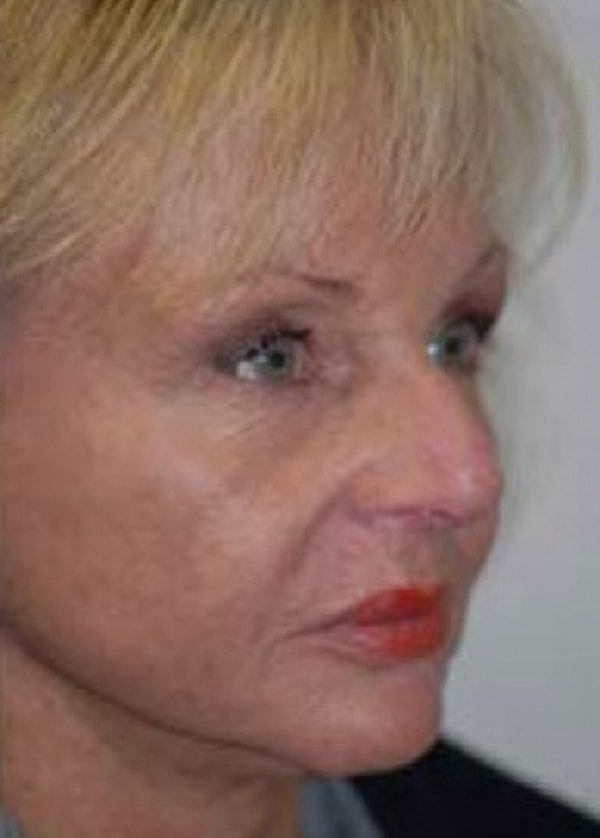Facelift and Mini Facelift Gallery - Patient 5883918 - Image 2
