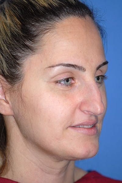 Rhinoplasty Gallery - Patient 5883921 - Image 1