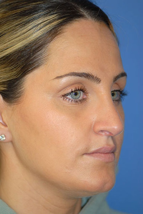 Rhinoplasty Gallery - Patient 5883921 - Image 2
