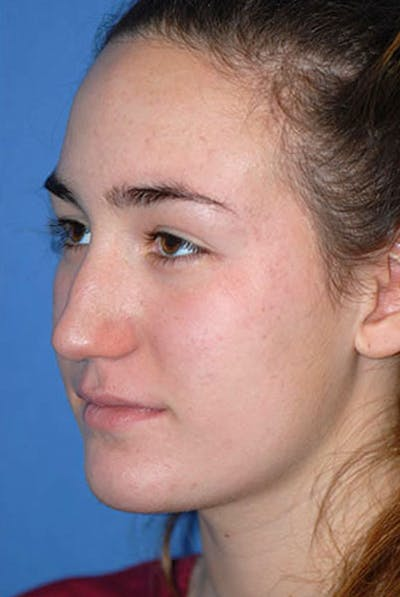 Rhinoplasty Gallery - Patient 5883922 - Image 1