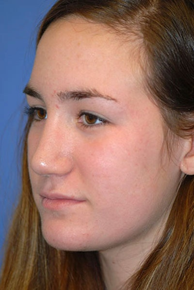 Rhinoplasty Gallery - Patient 5883922 - Image 2