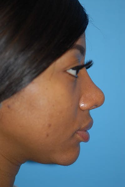 Rhinoplasty Gallery - Patient 5883923 - Image 29