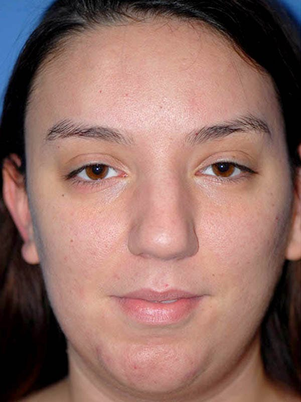Rhinoplasty Gallery - Patient 5883927 - Image 1