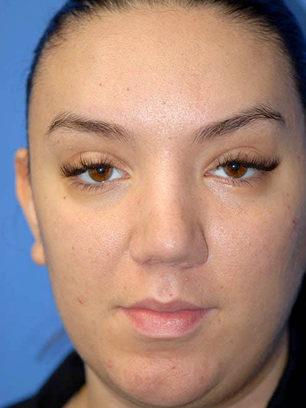Rhinoplasty Gallery - Patient 5883927 - Image 2