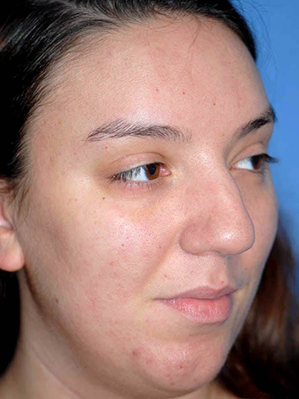 Rhinoplasty Gallery - Patient 5883927 - Image 3