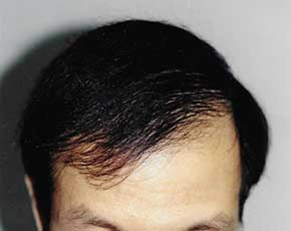 Hair Transplant Gallery - Patient 5883924 - Image 2