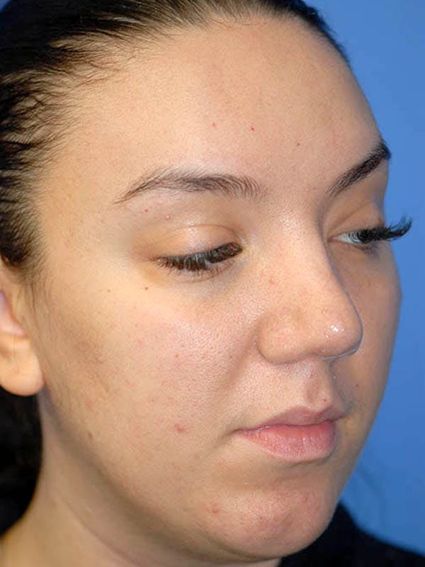 Rhinoplasty Gallery - Patient 5883927 - Image 4