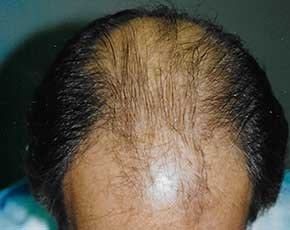 Hair Transplant Gallery - Patient 5883926 - Image 1