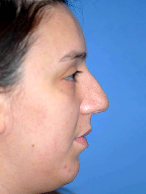 Rhinoplasty Gallery - Patient 5883927 - Image 5