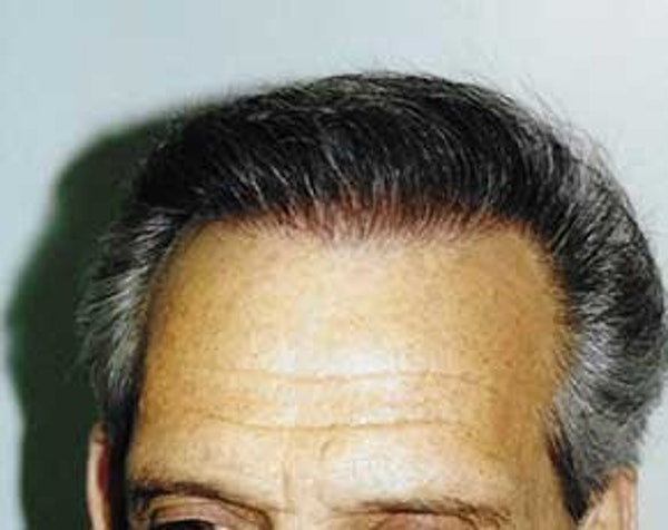 Hair Transplant Gallery - Patient 5883926 - Image 2