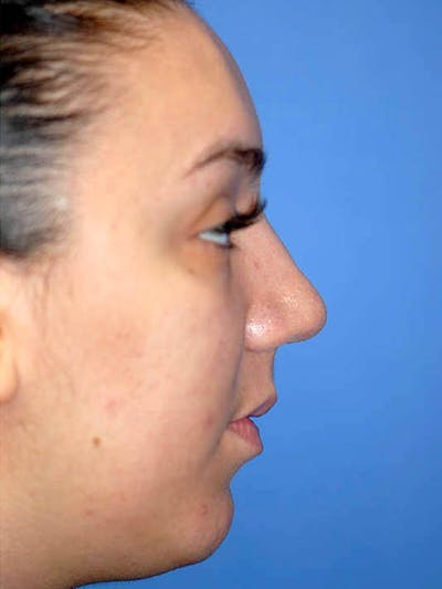 Rhinoplasty Gallery - Patient 5883927 - Image 6