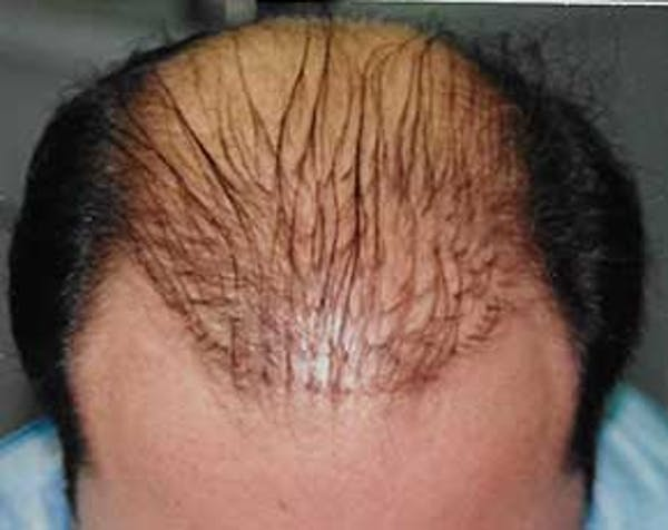Hair Transplant Gallery - Patient 5883929 - Image 1