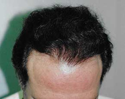 Hair Transplant Gallery - Patient 5883929 - Image 2