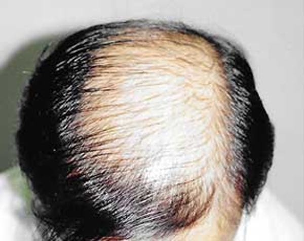 Hair Transplant Gallery - Patient 5883932 - Image 1
