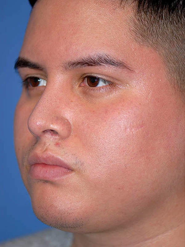 Rhinoplasty Gallery - Patient 5883933 - Image 2