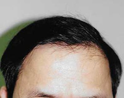Hair Transplant Gallery - Patient 5883932 - Image 4