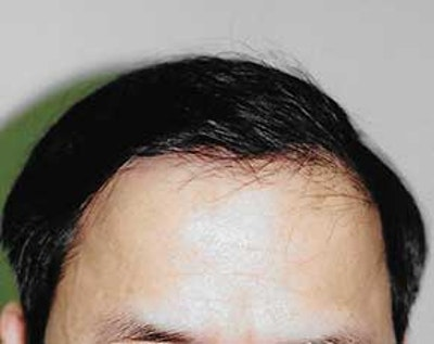 Hair Transplant Gallery - Patient 5883932 - Image 2