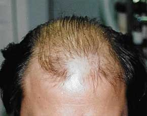 Hair Transplant Gallery - Patient 5883934 - Image 1