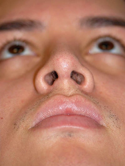 Rhinoplasty Gallery - Patient 5883933 - Image 4