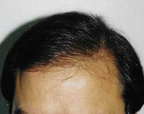 Hair Transplant Gallery - Patient 5883934 - Image 2