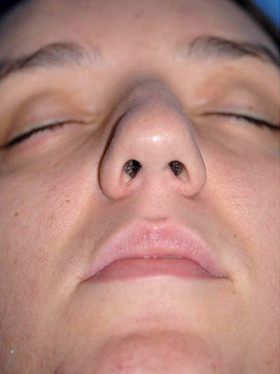Rhinoplasty Gallery - Patient 5883937 - Image 1